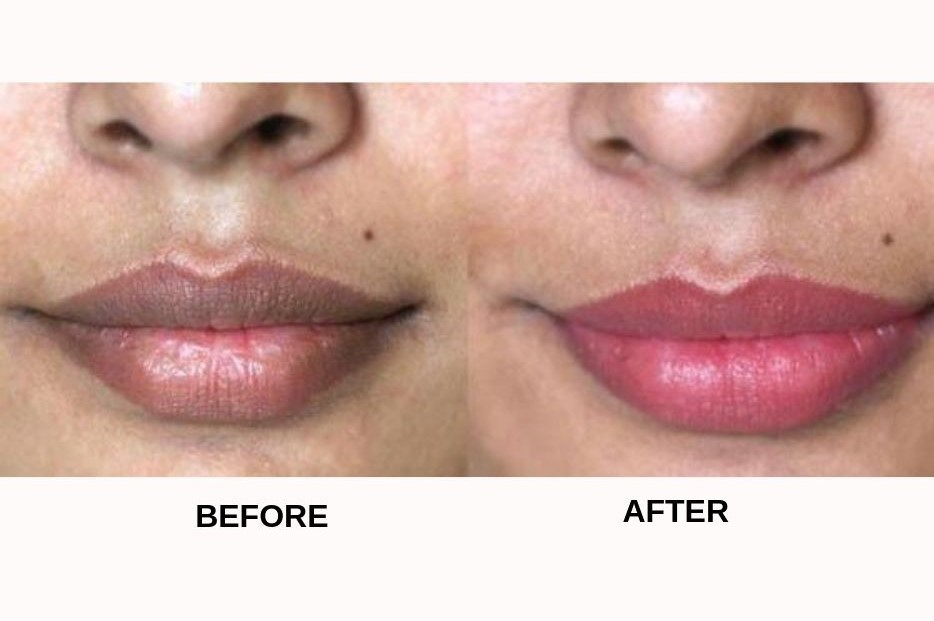 5 Proven Ways To Lighten Dark Lips
