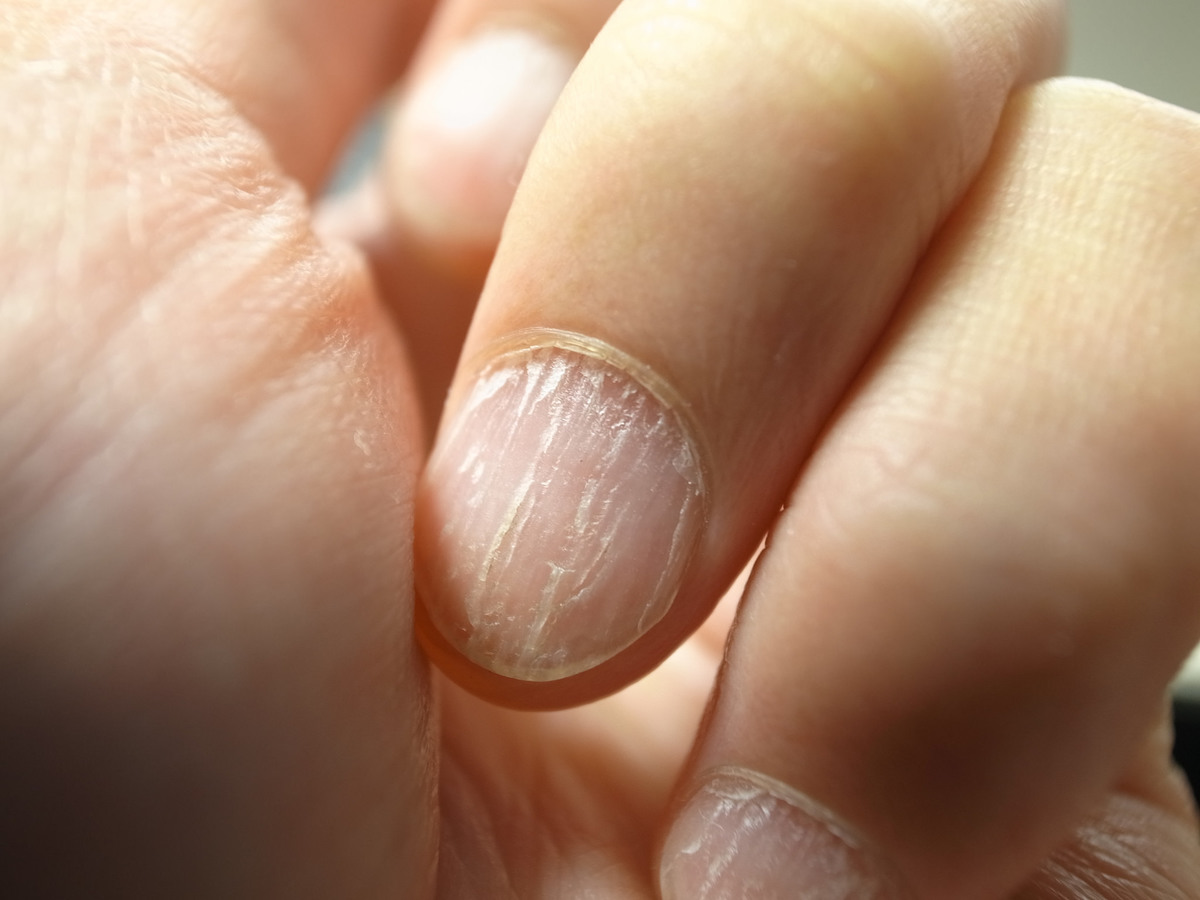 9 Things Your Nails Reveal About Your Health | Fabbon