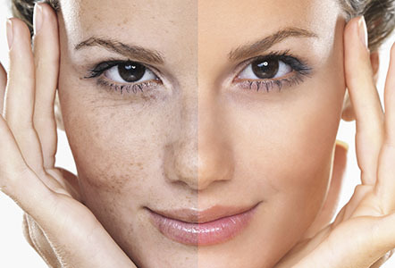 Hyperpigmentation Treatment, Types, Causes And Prevention