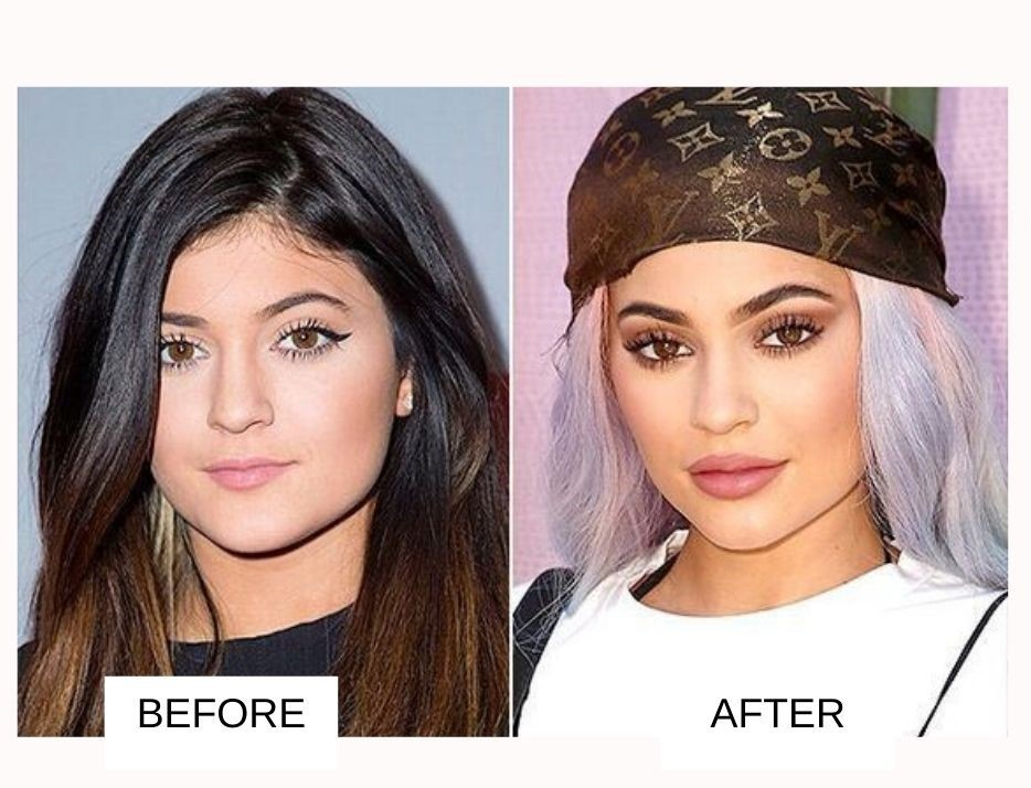 Kylie Jenner Plastic Surgery: Before And After Images - 2020