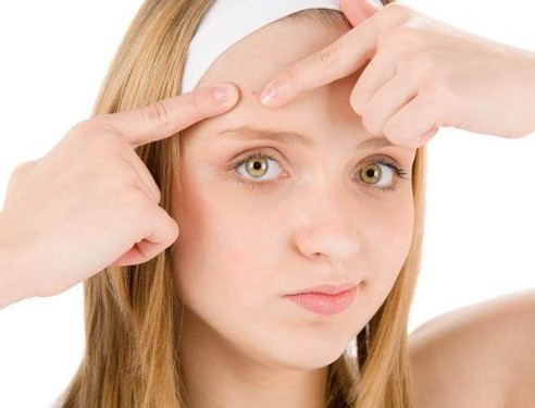 What Are Whiteheads And How To Get Rid Of Them At Home!