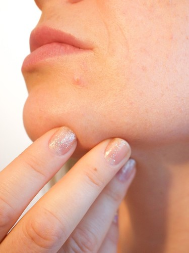 Acne check 5 home remedies