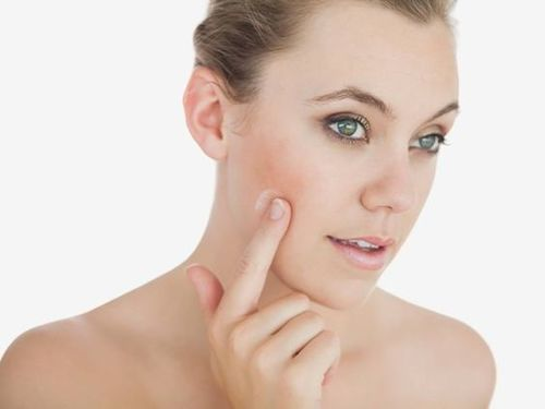 How To Get Rid Of Open Pores On Face Naturally