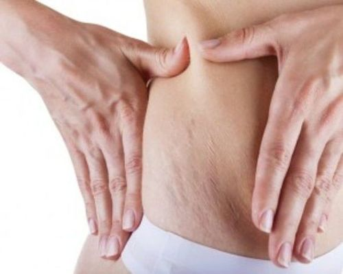 How To Remove Stretch Marks - 15 Proven Home Remedies