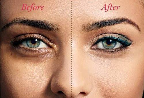 How To Get Rid Of Dark Circles Quickly