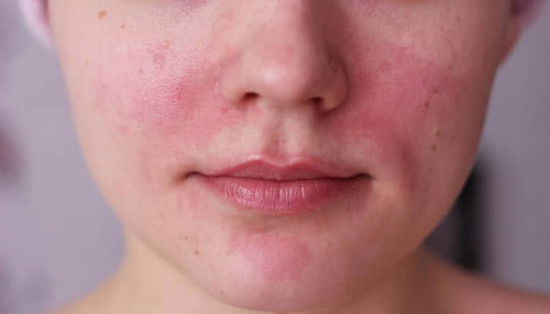 Acne Rosacea: Causes, Treatment And Skin Care Guidelines
