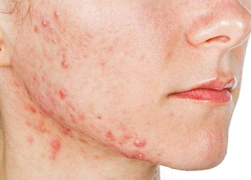 Cystic Acne: Causes, Treatment, Symptoms And Prevention