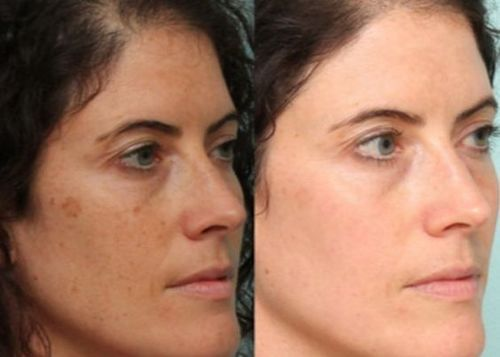 Best Natural Remedies For Dark Spots On Face