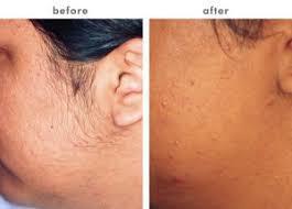 Facial Hair Removal At Home