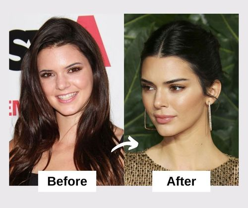 Kendall Jenner Plastic Surgery And Nose Job
