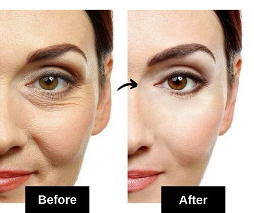 under eye wrinkles home remedies