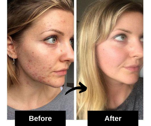 acne scars home remedy