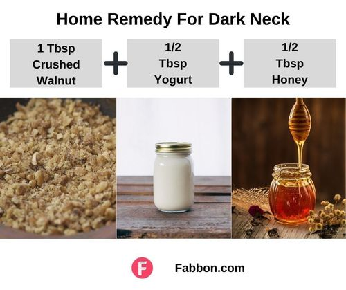 8_Home_Remedy_For_Dark_Neck