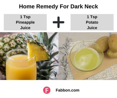 13_Home_Remedy_For_Dark_Neck