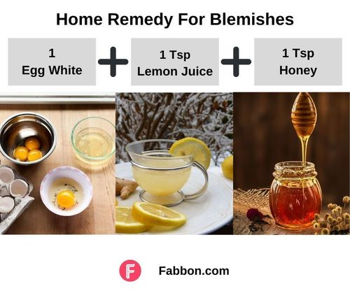8_Home_Remedy_For_Blemishes