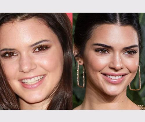 12_Kendall_Jenner_Plastic_Surgery