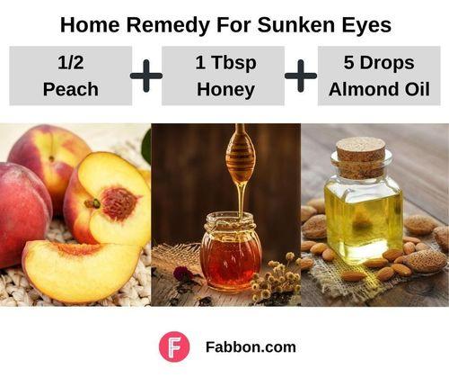 2_Home_Remedies_For_Sunken_Eyes