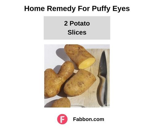14_Home_Remedies_For_Puffy_Eyes