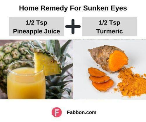 Best_Home_remedy_for_Sunken_eyes