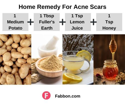 1_Home_Remedies_For_Acne_Scars