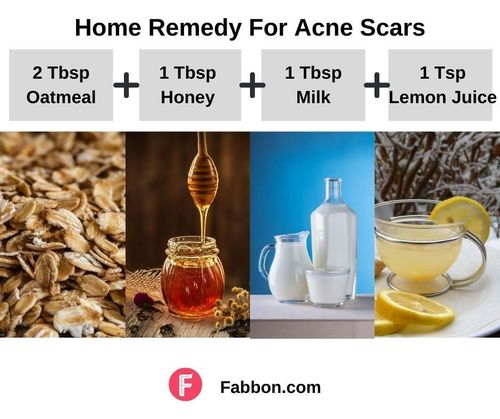 2_Home_Remedies_For_Acne_Scars