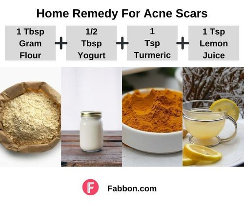 3_Home_Remedies_For_Acne_Scars