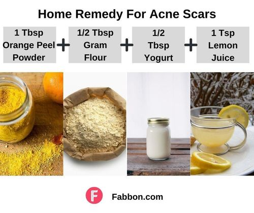 4_Home_Remedies_For_Acne_Scars