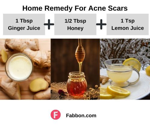 5_Home_Remedies_For_Acne_Scars