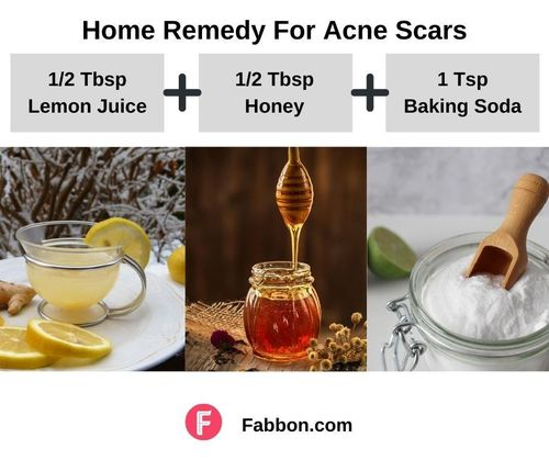 6_Home_Remedies_For_Acne_Scars