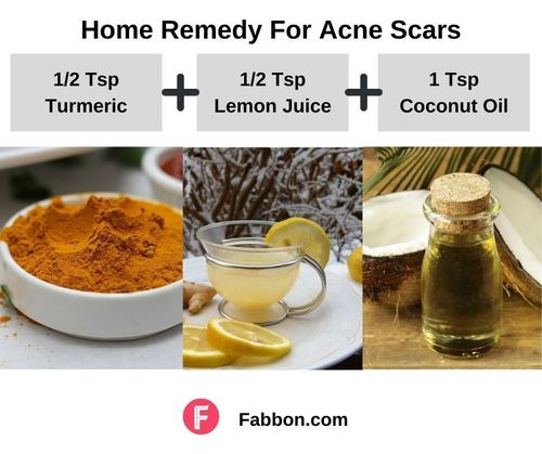 7_Home_Remedies_For_Acne_Scars