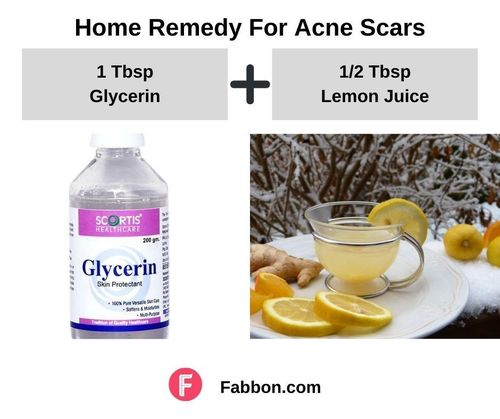8_Home_Remedies_For_Acne_Scars