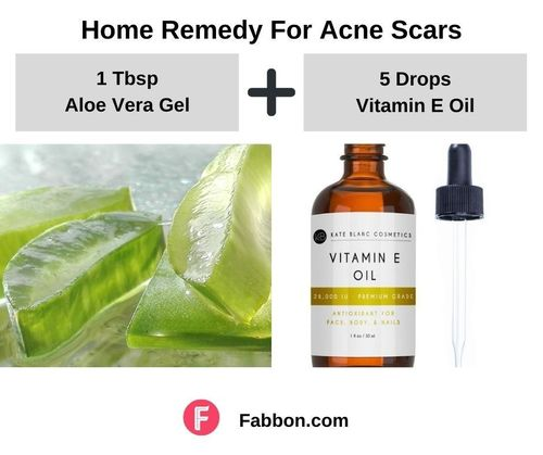 9_Home_Remedies_For_Acne_Scars