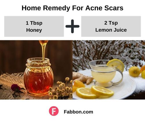 11_Home_Remedies_For_Acne_Scars