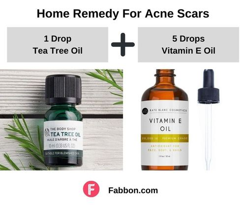 12_Home_Remedies_For_Acne_Scars