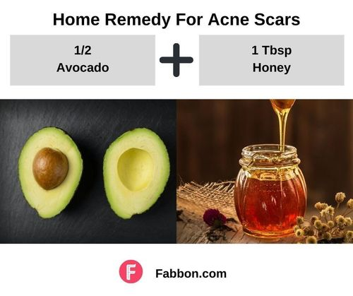 13_Home_Remedies_For_Acne_Scars