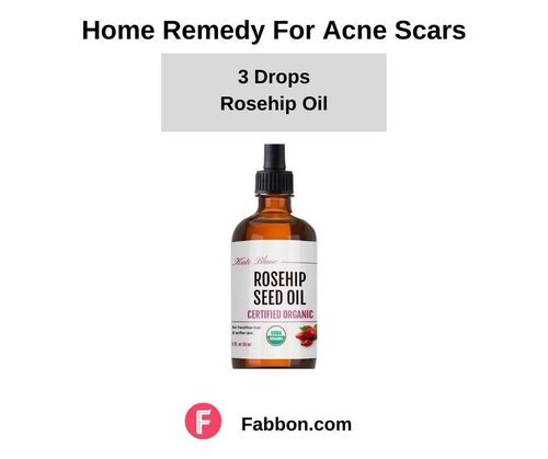 14_Home_Remedies_For_Acne_Scars
