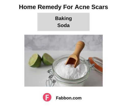 15_Home_Remedies_For_Acne_Scars