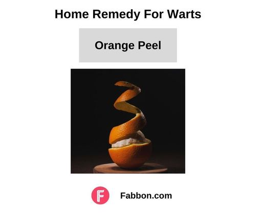 14_Home_Remedies_For_Warts