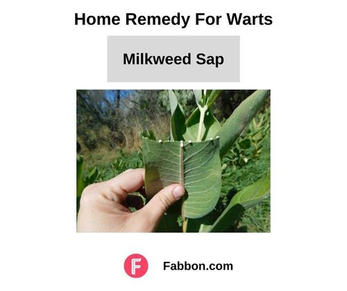 15_Home_Remedies_For_Warts