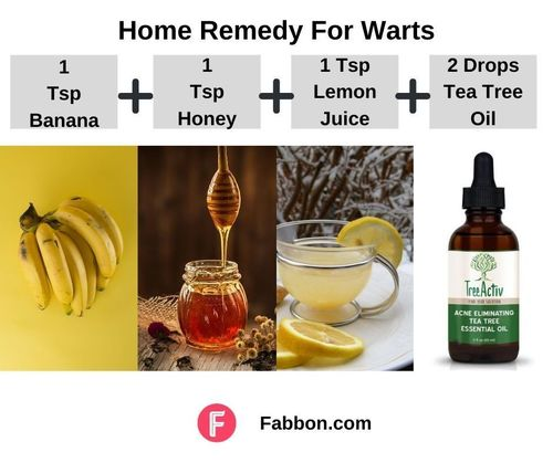 1_Home_Remedies_For_Warts