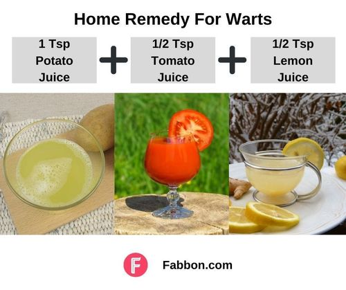 3_Home_Remedies_For_Warts