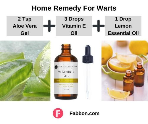 4_Home_Remedies_For_Warts