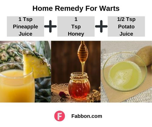 5_Home_Remedies_For_Warts
