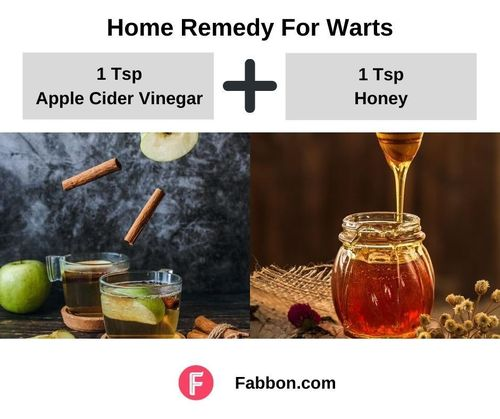 6_Home_Remedies_For_Warts