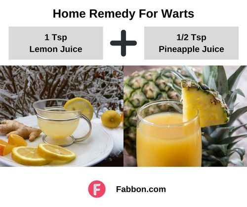 7_Home_Remedies_For_Warts