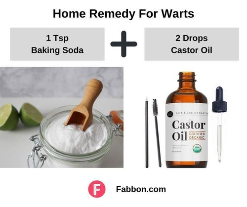 8_Home_Remedies_For_Warts