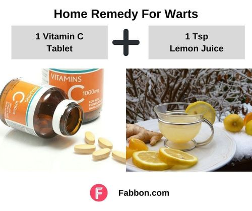 9_Home_Remedies_For_Warts