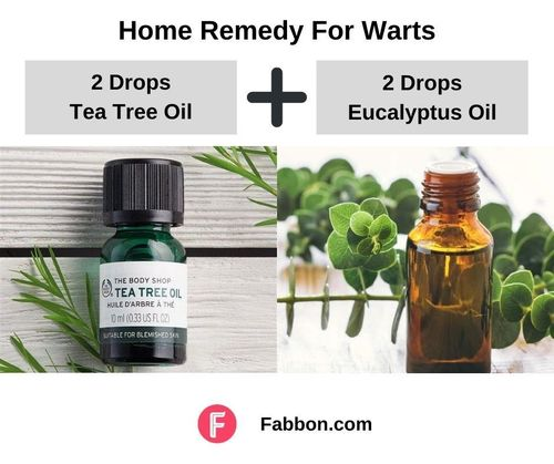 11_Home_Remedies_For_Warts