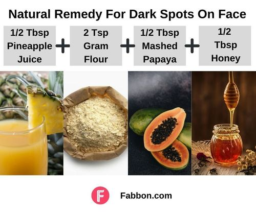 1_Natural_Remedies_For_Dark_Spots_On_Face