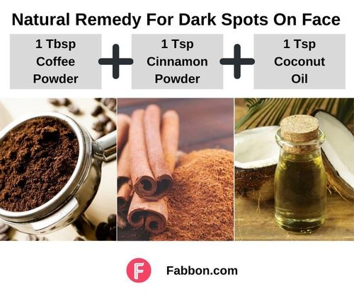 9_Natural_Remedies_For_Dark_Spots_On_Face